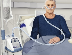 Интенсивная терапия. Высокопоточная назальная оксигенотерапия — практическое руководство