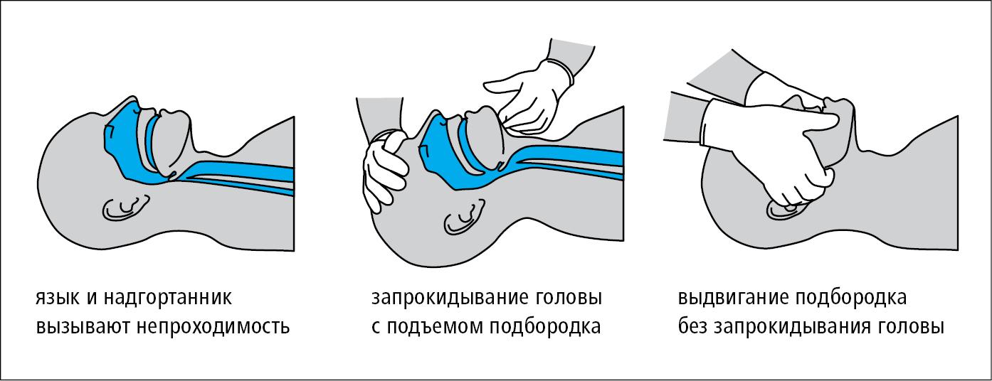 Восстановление проходимости дыхательных путей (также → рис. 23.8-2 )