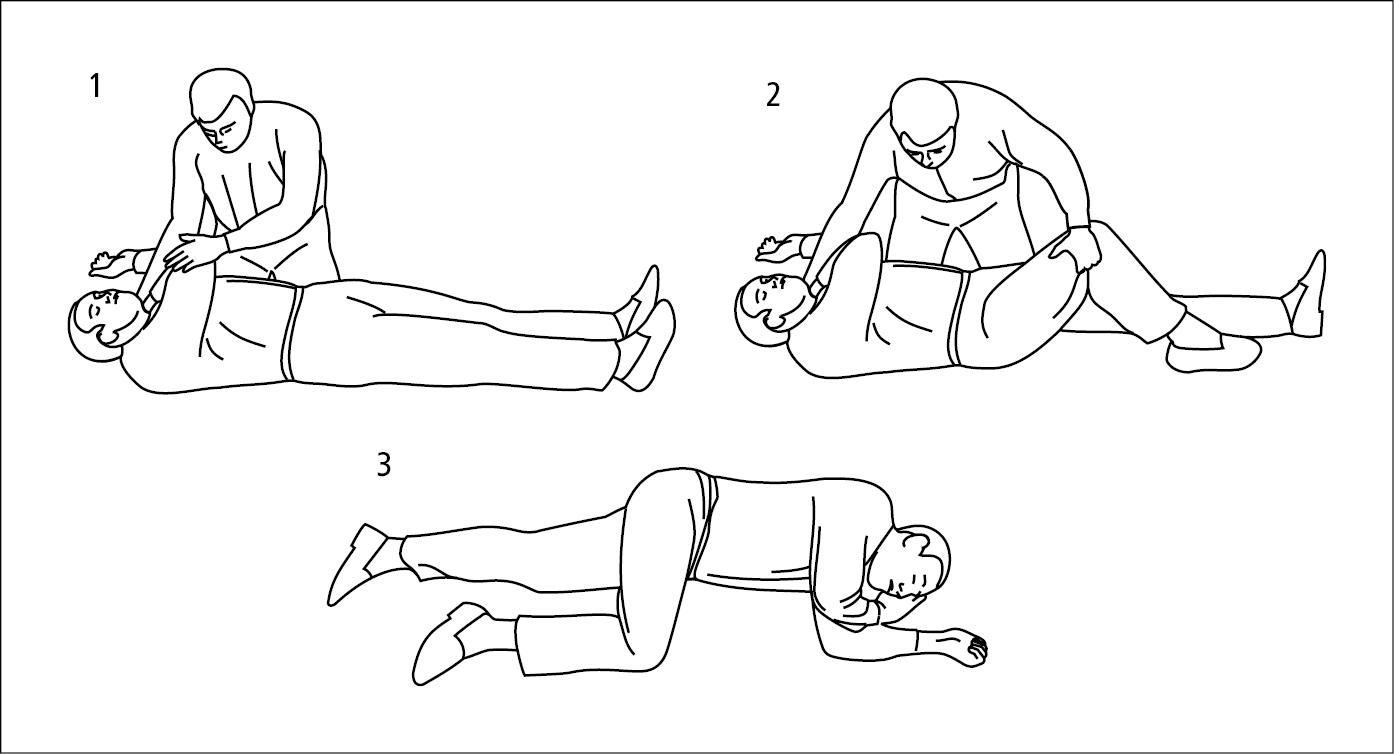 Укладывание пациента без сознания в безопасной позиции