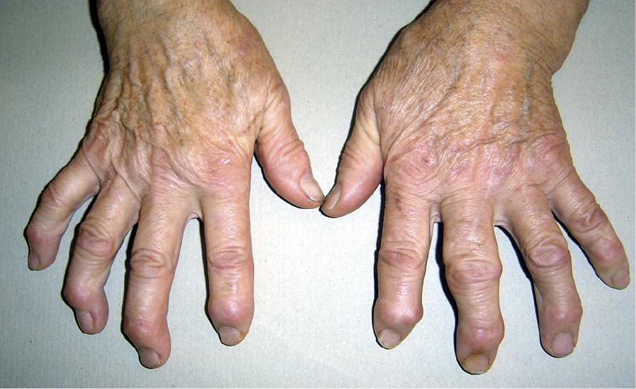 Деформирующий остеоартроз кистей — узелки Гебердена (над дистальными межфаланговыми суставами) на большинстве пальцев обеих кистей, узелок Бушара (над проксимальным межфаланговым суставом) III пальца левой кисти.