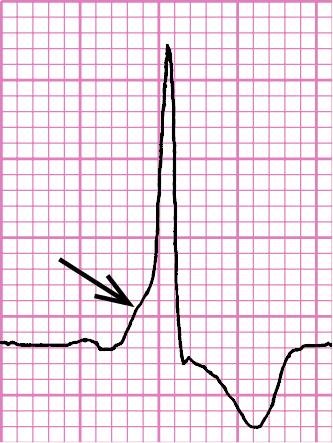 Síndrome de preexcitación: intervalo PQ corto, onda delta en la rama ascendente de la onda R (flecha), dirección opuesta del segmento ST y de la onda T a la del complejo QRS ancho