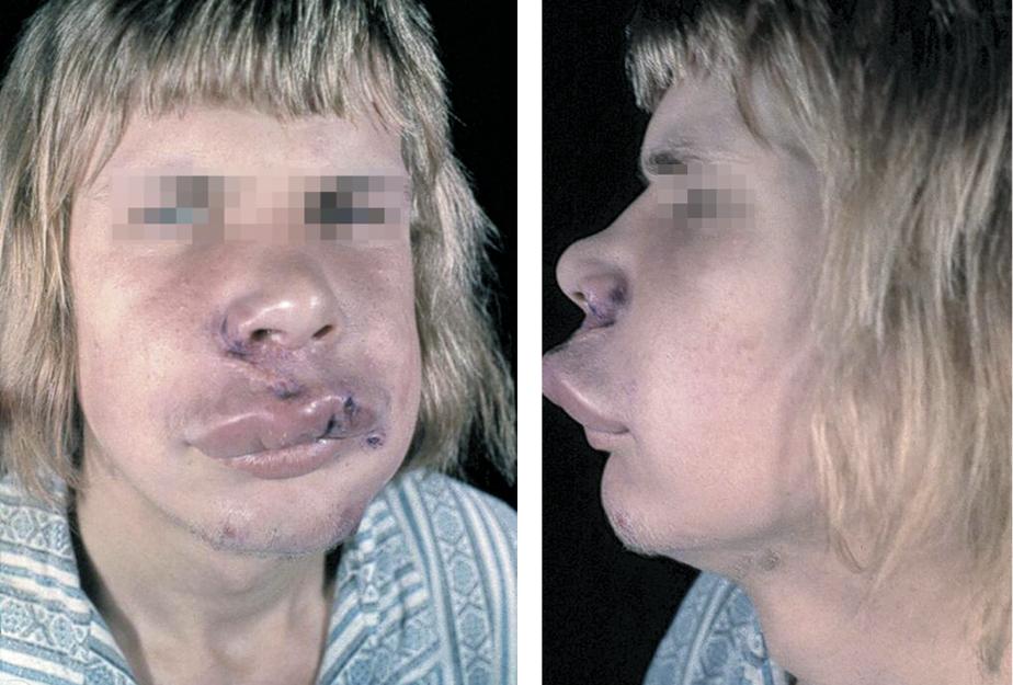 inflamacion de la cara y labios