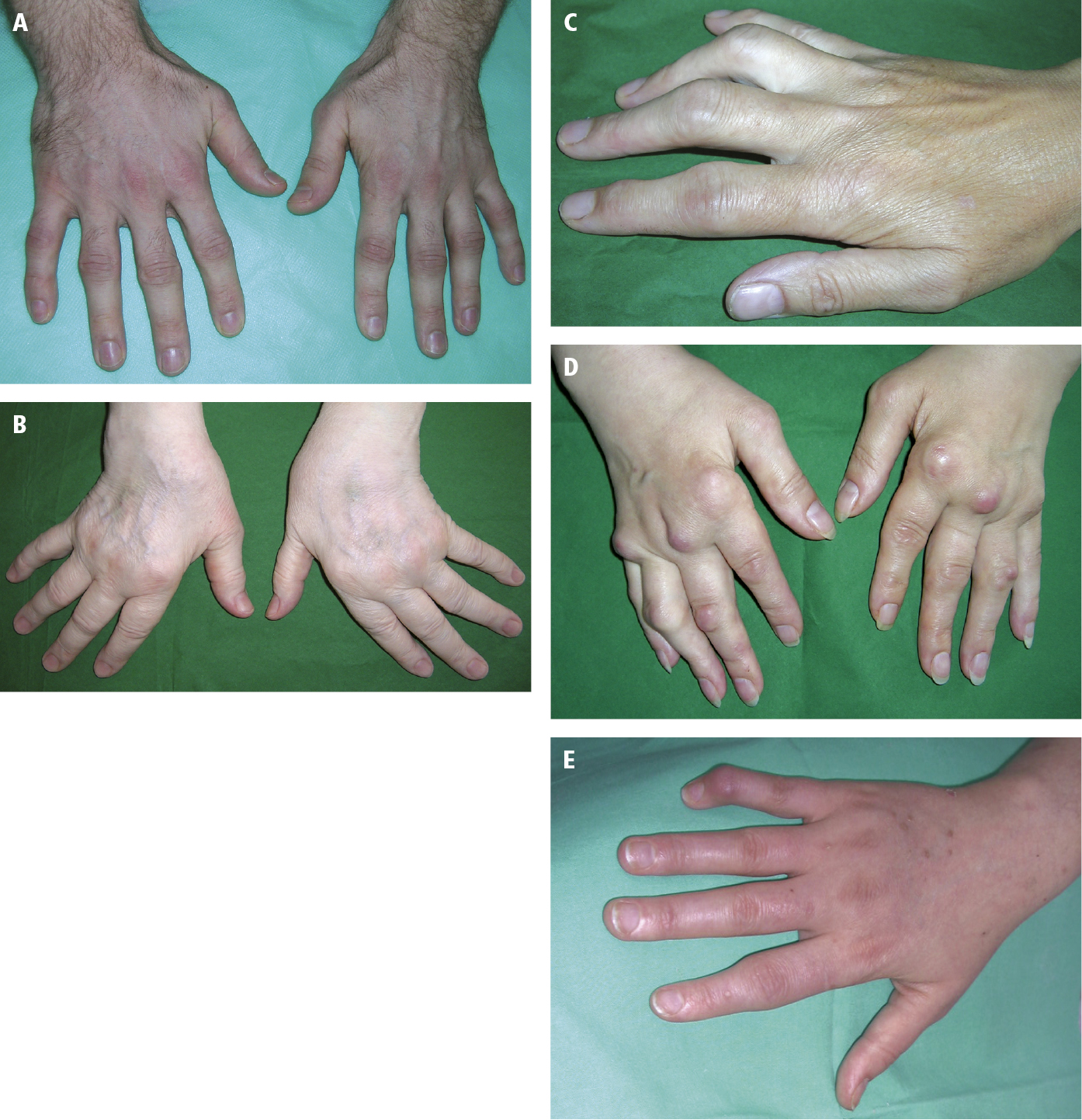 Artritis psoriásica - Espondiloartropatías - Enfermedades reumáticas ...