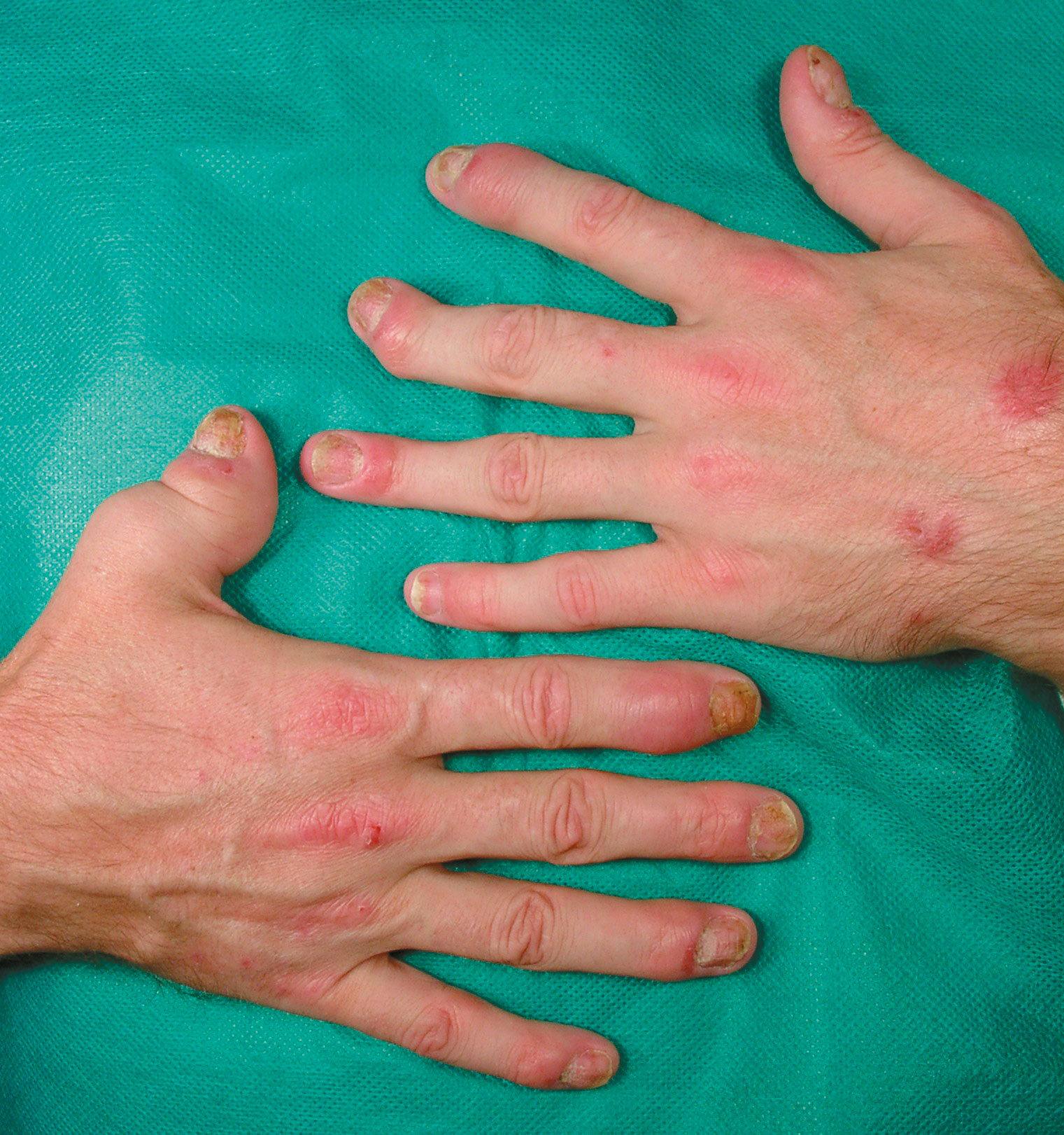 inflamacion de articulaciones de los dedos de las manos