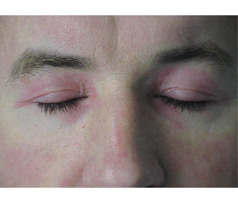 Dermatomiositis sintomas