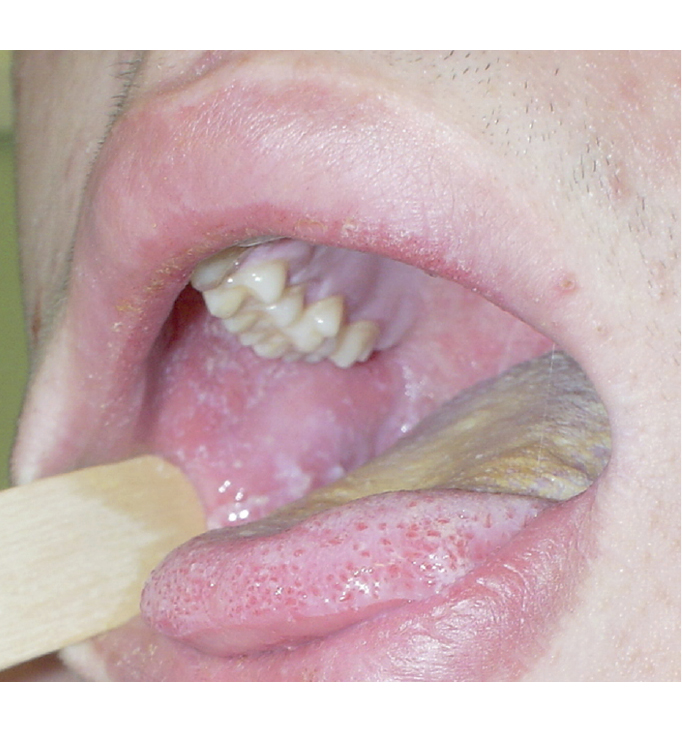 Sarampión: manchas de Koplik en la mucosa oral de la mejilla