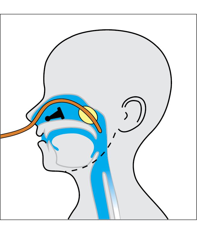 Cuerpo extraño en la cavidad nasal - Primeros auxilios en ...