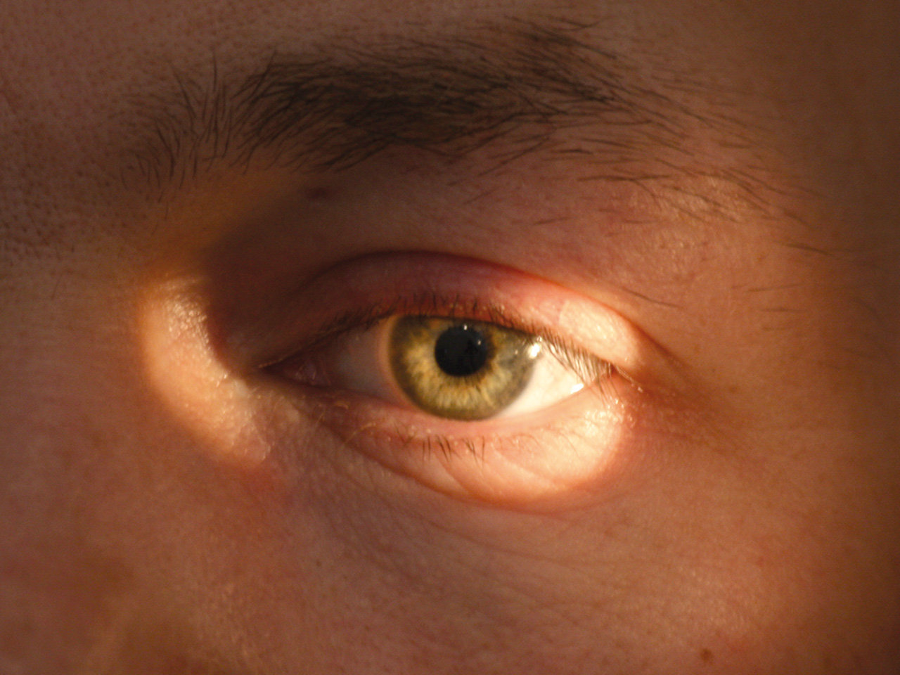 infeccion en el ojo por golpe
