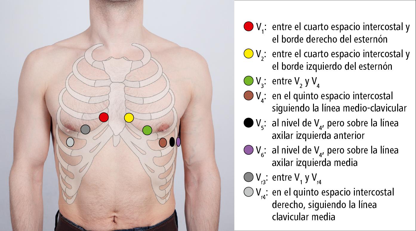 Resultado de imagen para colocación de los electrodos en el electrocardiograma