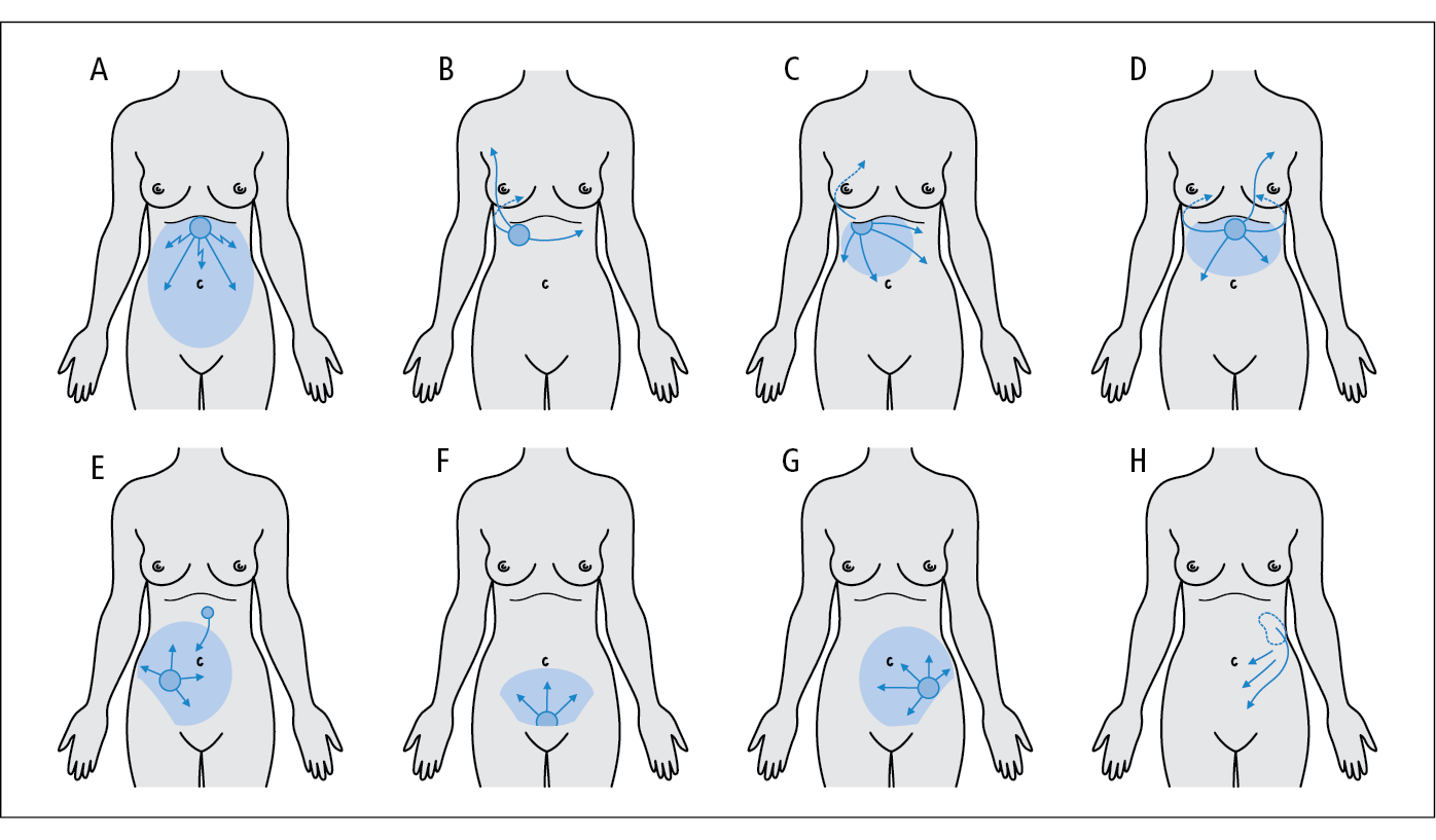 Dolor cuadrante superior izquierdo del abdomen