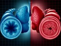Postępy wleczeniu astmy lekkiej– cowynika znowych danych naukowych?