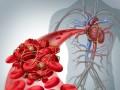 Leczenie trombolityczne uchorych na nowotwory (cz. 1)