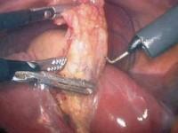 Cholecystektomia (usunięcie pęcherzyka żółciowego)