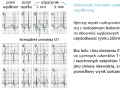 Elektrokardiograficzna próba wysiłkowa (cz. 9)