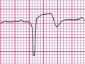 Czy inaczej będziemy rozpoznawać zawał serca? Czwarta uniwersalna definicja zawału serca, ESC 2018
