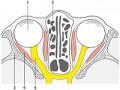 Oponiak nerwu wzrokowego