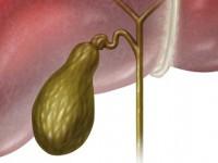 Choroby dróg żółciowych ipęcherzyka żółciowego