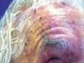 90-letnia kobieta zrozsianymi nadżerkami na skórze twarzy