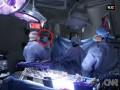 Pierwsze wUSA przeszczepienia narządów między dawcą ibiorcą zHIV