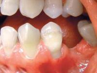 Zanikanie kości po utracie zębów