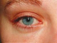 Ostre, okresowe iprzetrwałe alergiczne zapalenie spojówek