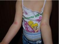 Postępy wdermatologii dziecięcej w2012 roku