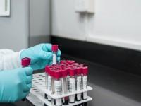 HIV/AIDS - Europejski Tydzień Testowania