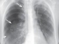 Płyn wjamie opłucnej