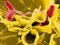 Biegunka bakteryjna
