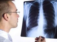 Choroba śródmiąższowa płuc związana zzapaleniem oskrzelików izłuszczające się śródmiąższowe zapalenie płuc