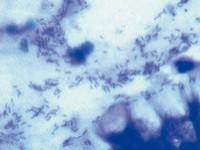 Choroba wrzodowa żołądka idwunastnicy