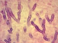 Grzybica płuc