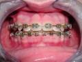 Higiena jamy ustnej udzieci leczonych ortodontycznie