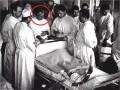 50 lat temu dokonano pierwszego wPolsce rodzinnego przeszczepienia nerki