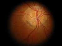 Druzy tarczy nerwu wzrokowego