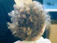 Wełniste włosy – kiedy mogą wskazywać na zajęcie ośrodkowego układu nerwowego?