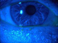 Barwienie powierzchni oka fluoresceiną, różem bengalskim lub zielenią lizaminową
