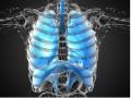 Atezolizumab czy docetaksel uwcześniej leczonych chorych na niedrobnokomórkowego raka płuca?