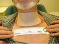 Reakcje skórne związane zradioterapią