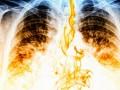Obserwacja chorych po leczeniu zpowodu raka płuca