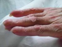 Osteoartropatia przerostowa