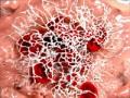 Leczenie trombolityczne uchorych na nowotwory (cz. 2)