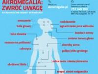 Akromegalia: jak rozpoznać chorobę?