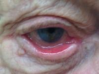 Odwinięcie powieki (ektropion)