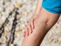 Antykoagulacja wnawrotowej zakrzepicy  żył głębokich (ZŻG)
