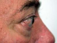 Orbitopatia tarczycowa