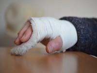 Ogólne zasady leczenia złamań kości