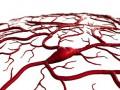 Olbrzymiokomórkowe zapalenie tętnic