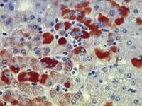 Przewlekłe wirusowe zapalenia wątroby