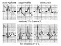 Elektrokardiograficzna próba wysiłkowa (cz. 7)